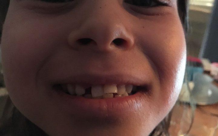 De tanden van Chantal haar dochter